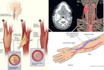 Dezvoltarea Chirurgiei Vasculare Periferice, o prioritate pentru Spitalul Sf. Constantin Brasov